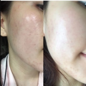 review mặt nạ cấp ẩm hydro calming mask